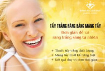 Sale up to 50% chi phí tẩy trắng răng Zoom White Perfect