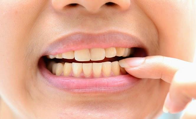 Làm trắng răng bằng máng tẩy có giá bao nhiêu? Bảng giá ƯU ĐÃI 2017 2