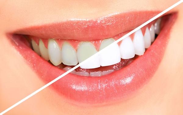Kết quả hình ảnh cho để xác định chi tiết, rõ ràng tình trang răng